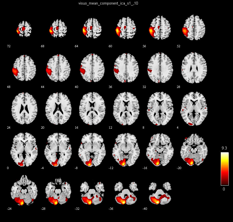 Group ICA Of fMRI Toolbox(GIFT) – TReNDS
